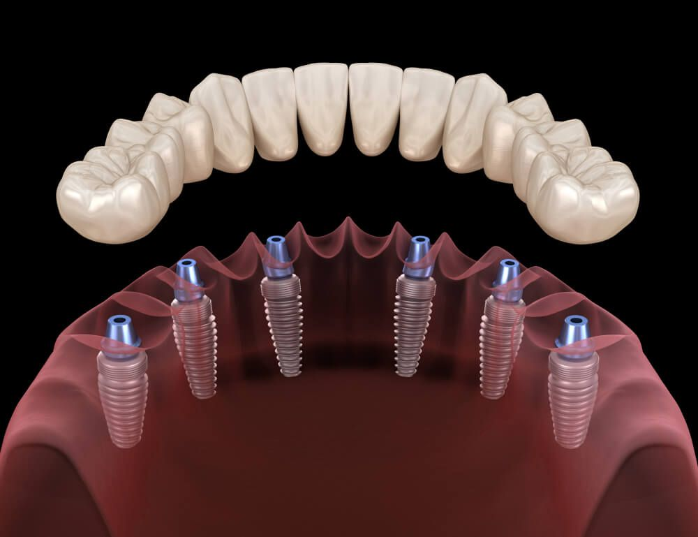 implant support dentures 3d image