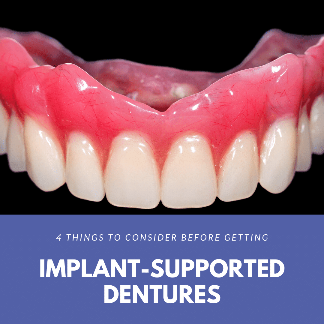 4 Things to Consider Before Getting Implant-Supported Dentures (1)
