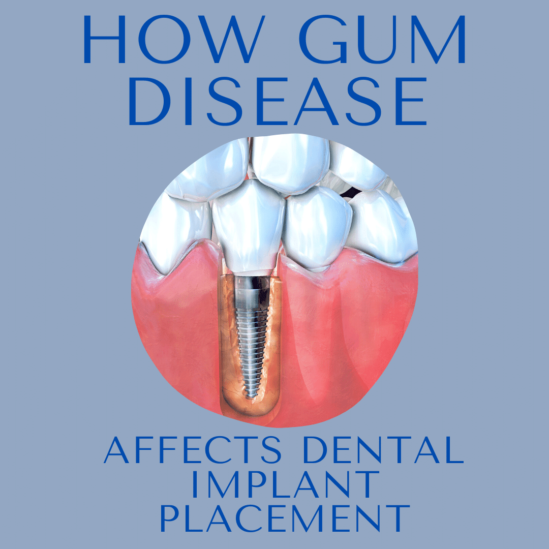 HOW GUM DISEASE AFFECTS DENTAL IMPLANT PLACEMENT