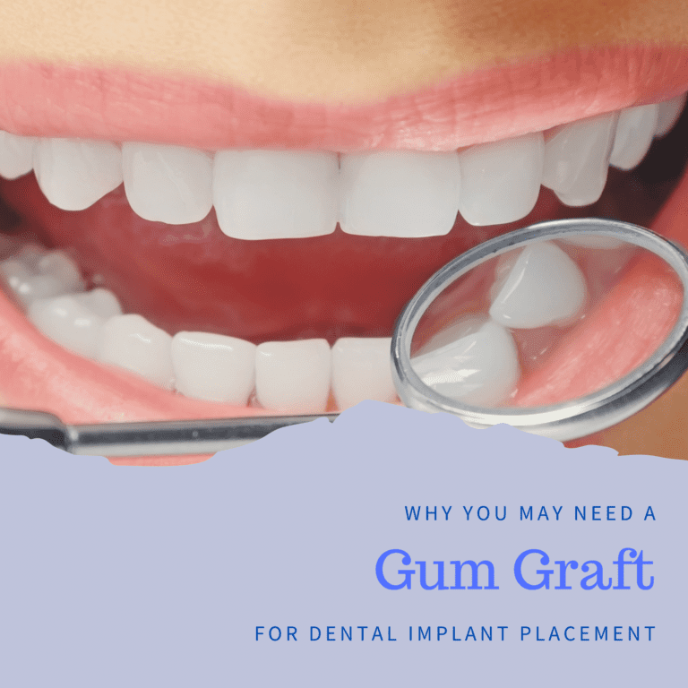 Why You May Need a Gum Graft for Dental Implant Placement