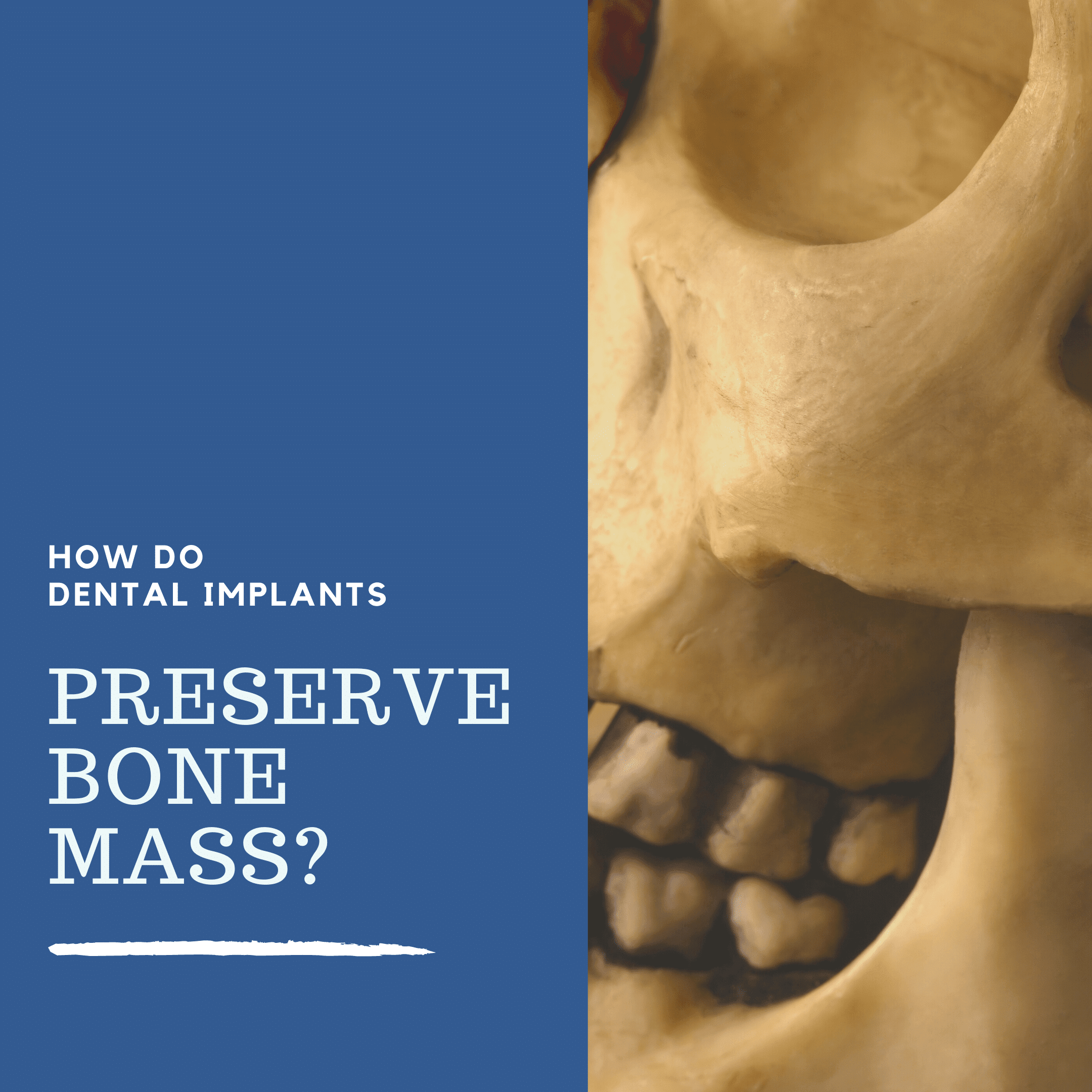How Do Dental Implants Preserve Bone Mass