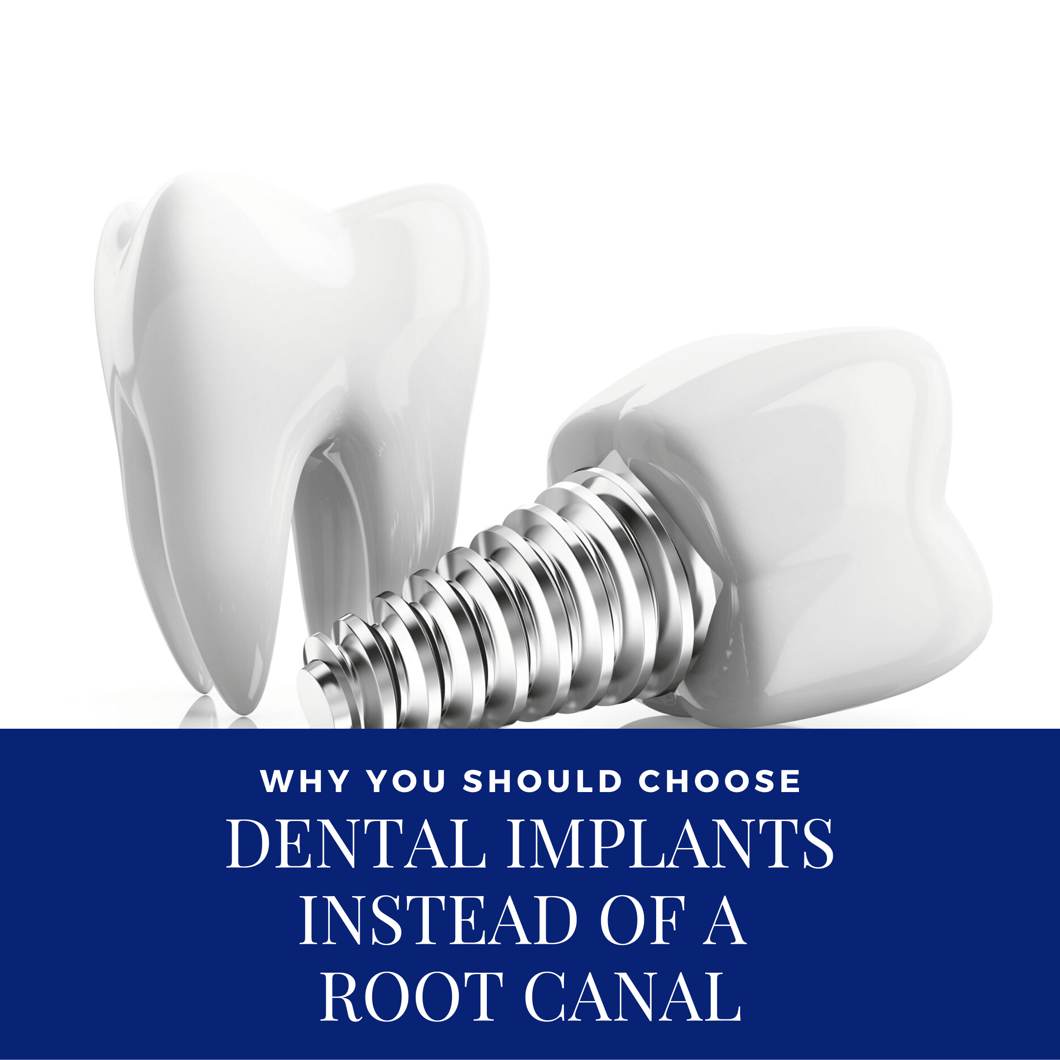 Why You Should Choose Dental Implants Instead of a Root Canal