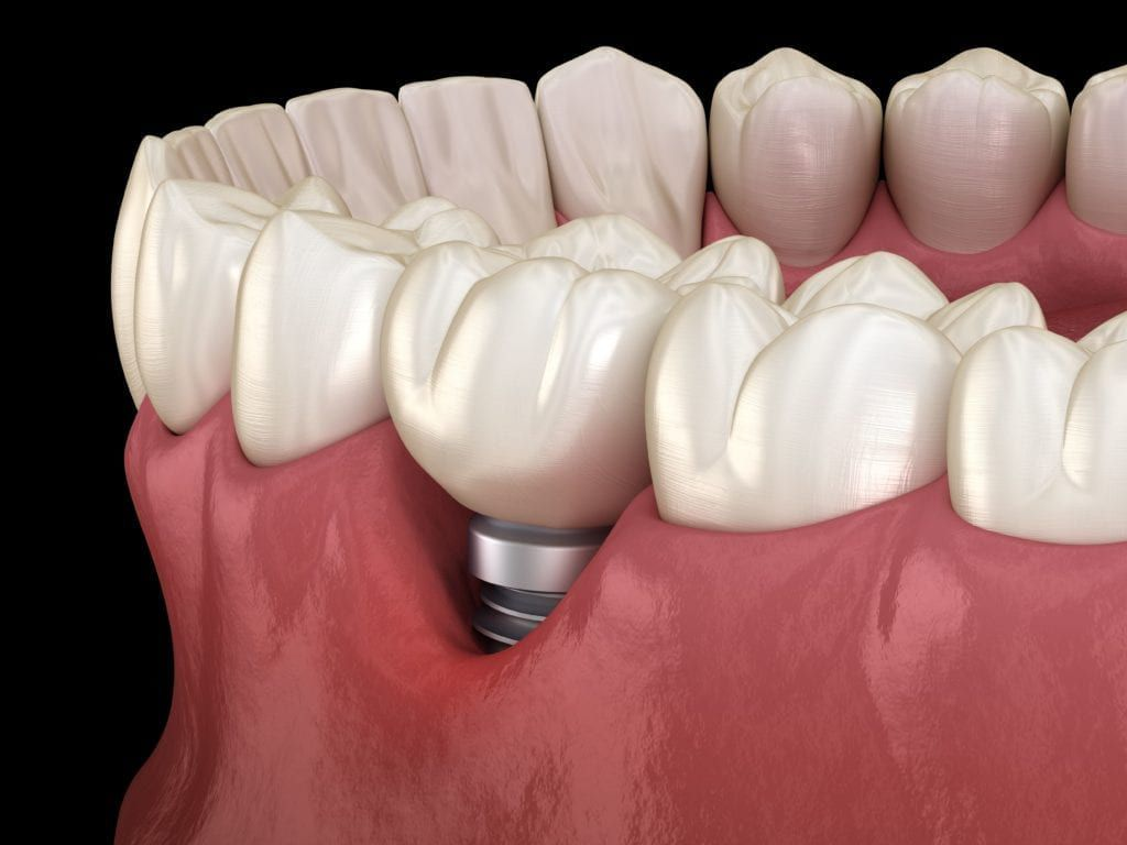 gum recession exposing dental implant