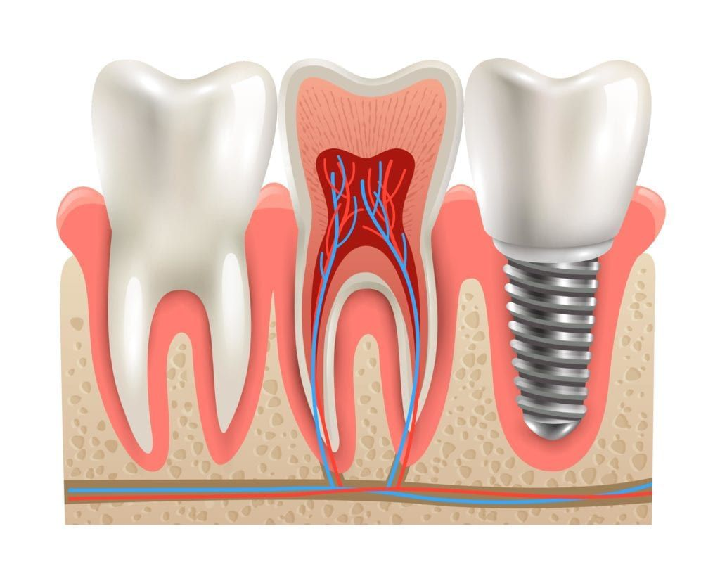 dental implant next to natural teeth