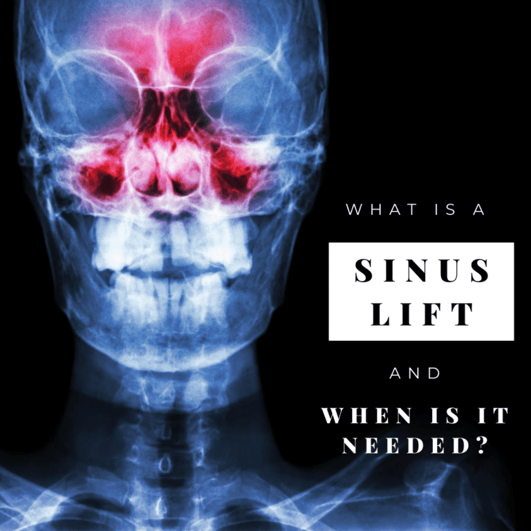 what is a sinus lift and when is it needed