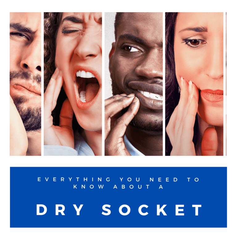 everything you need to know about a dry socket