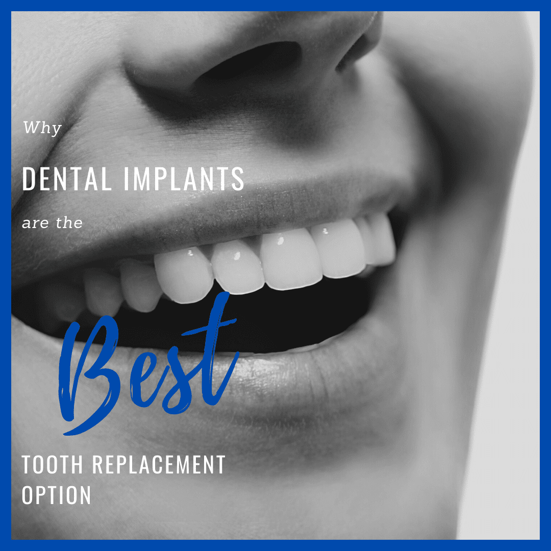 why dental implants are the best tooth replacement option