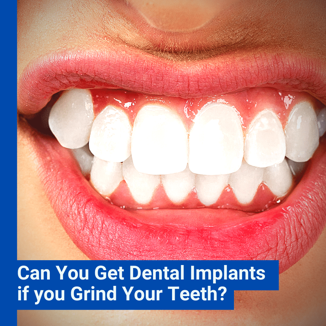 Can You Get Dental Implants if you Grind Your Teeth_