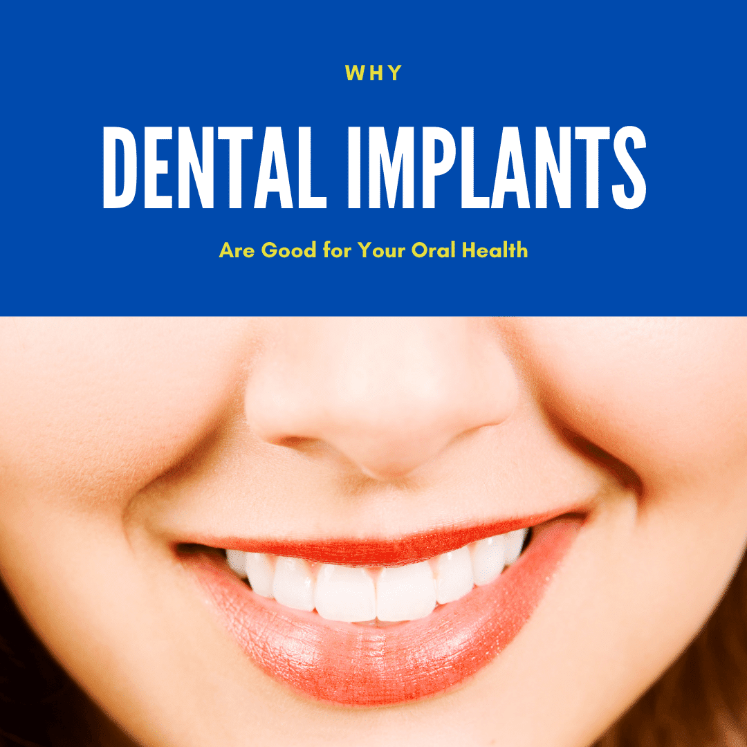 Why dental implants are good for your oral health