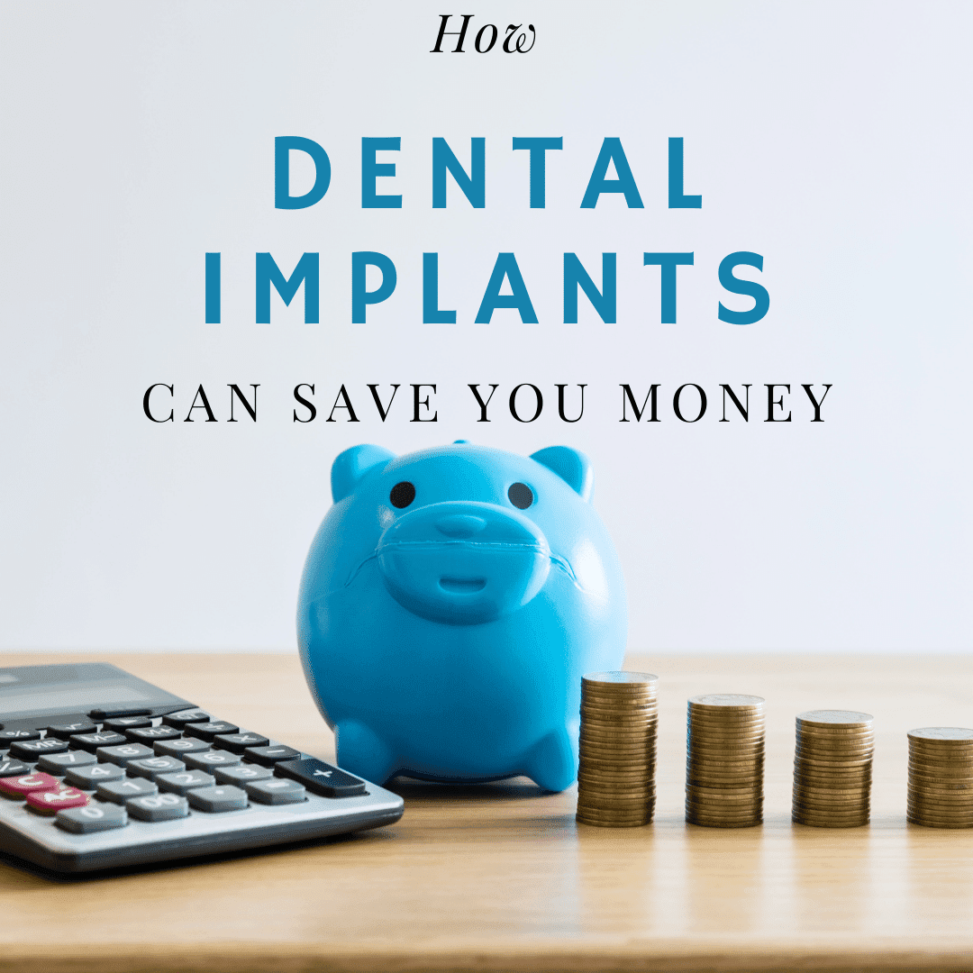 How Dental Implants Can Save You Money