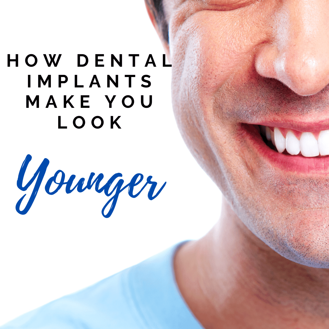 How Dental Implants Make YOu Look younger