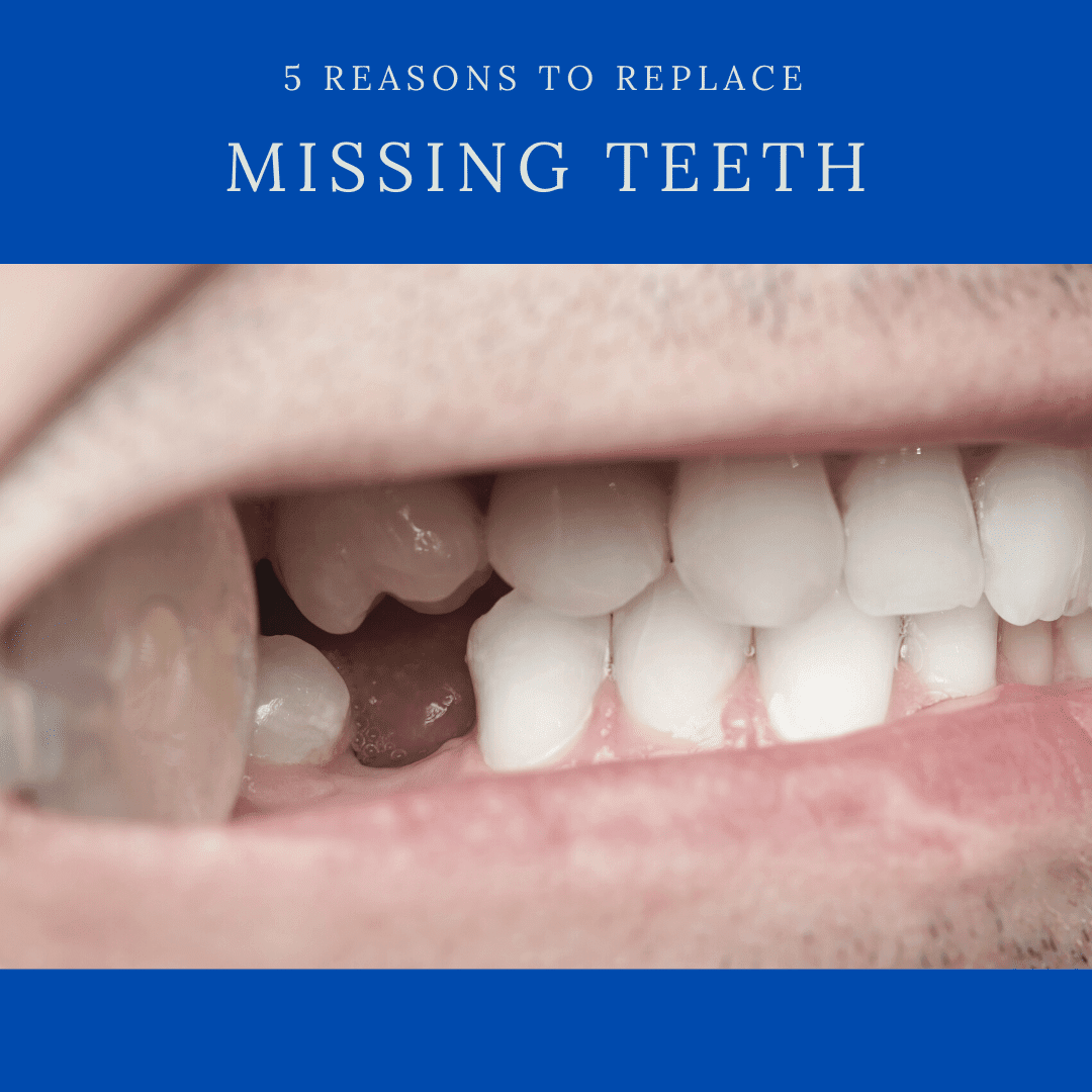 5 Reasons to replace missing teeth