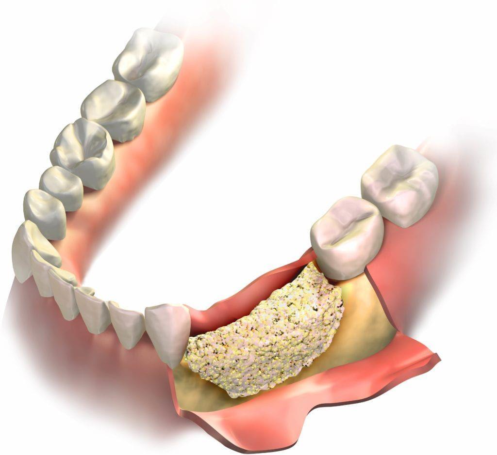 bone graft shown in jawbone
