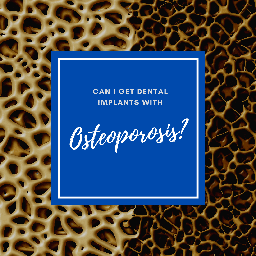 Can I Get Dental Implants with osteoporosis
