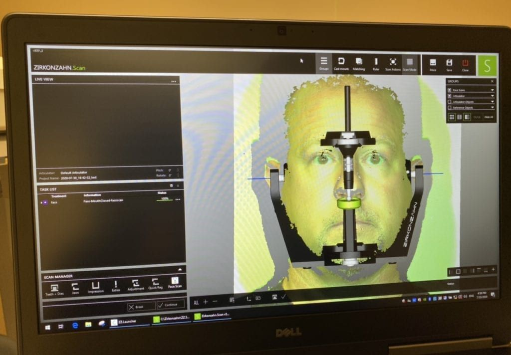 face hunter dental implant scanner