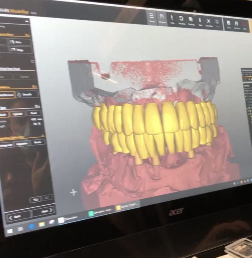 dental implant planning software