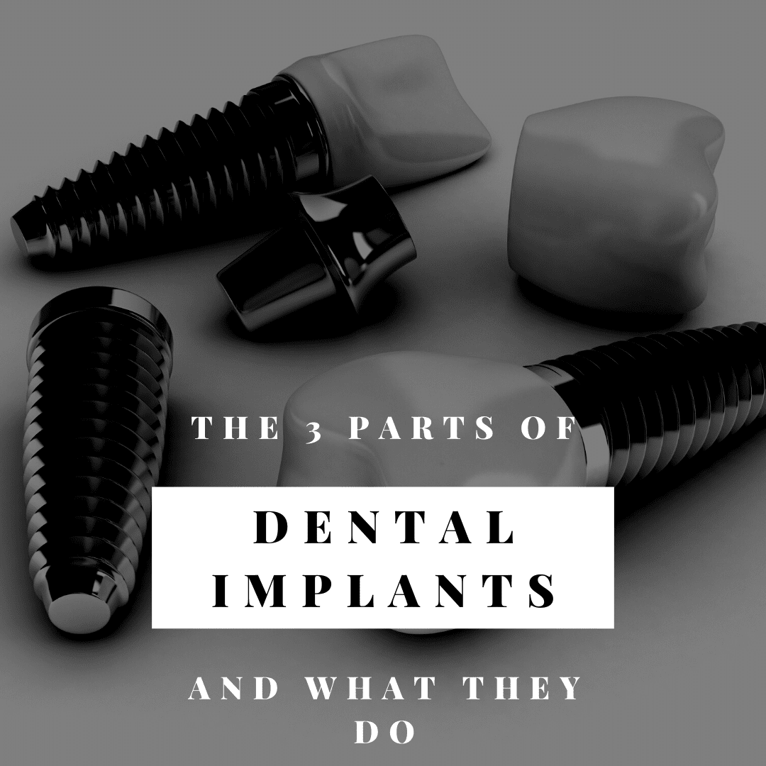 The 3 parts of dental implants and what they do
