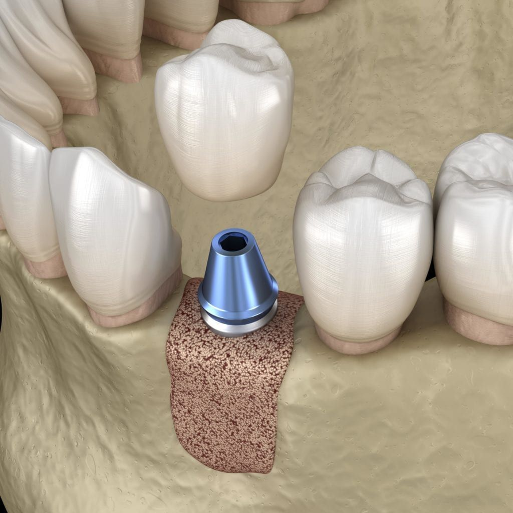 dental implant in jawbone shown with bone graft