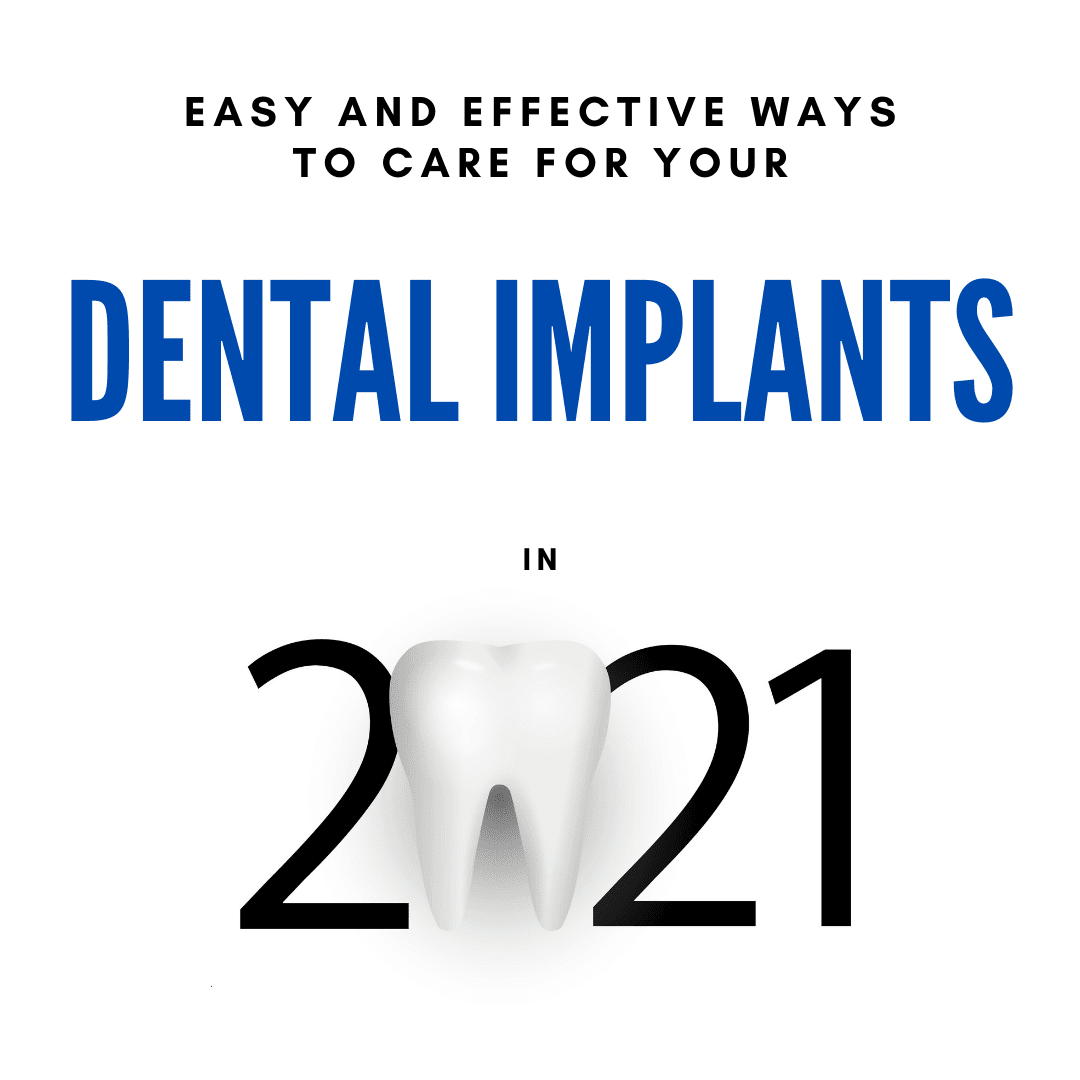 Easy and Effective Ways to care for your dental implants in 2021