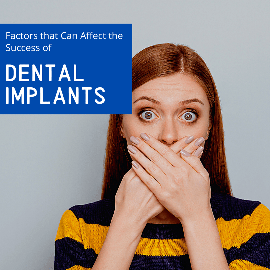 Factors that Can Affect the Success of dental implants