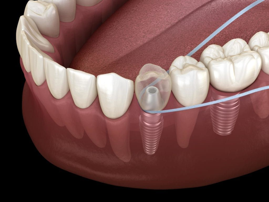 flossing around a dental implant