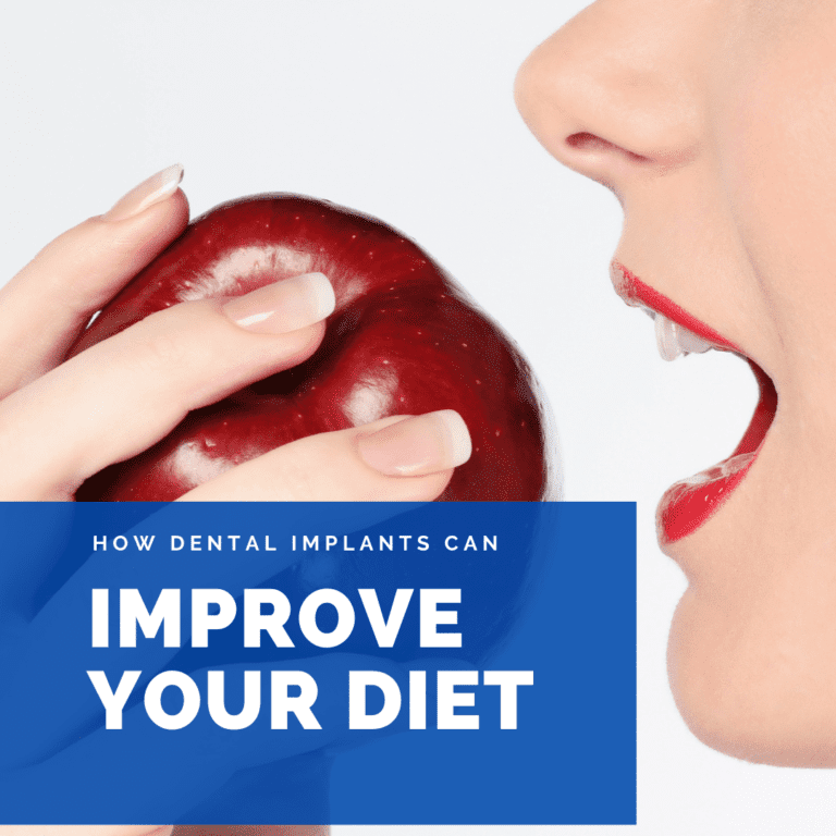 How Dental implants Can improve your diet