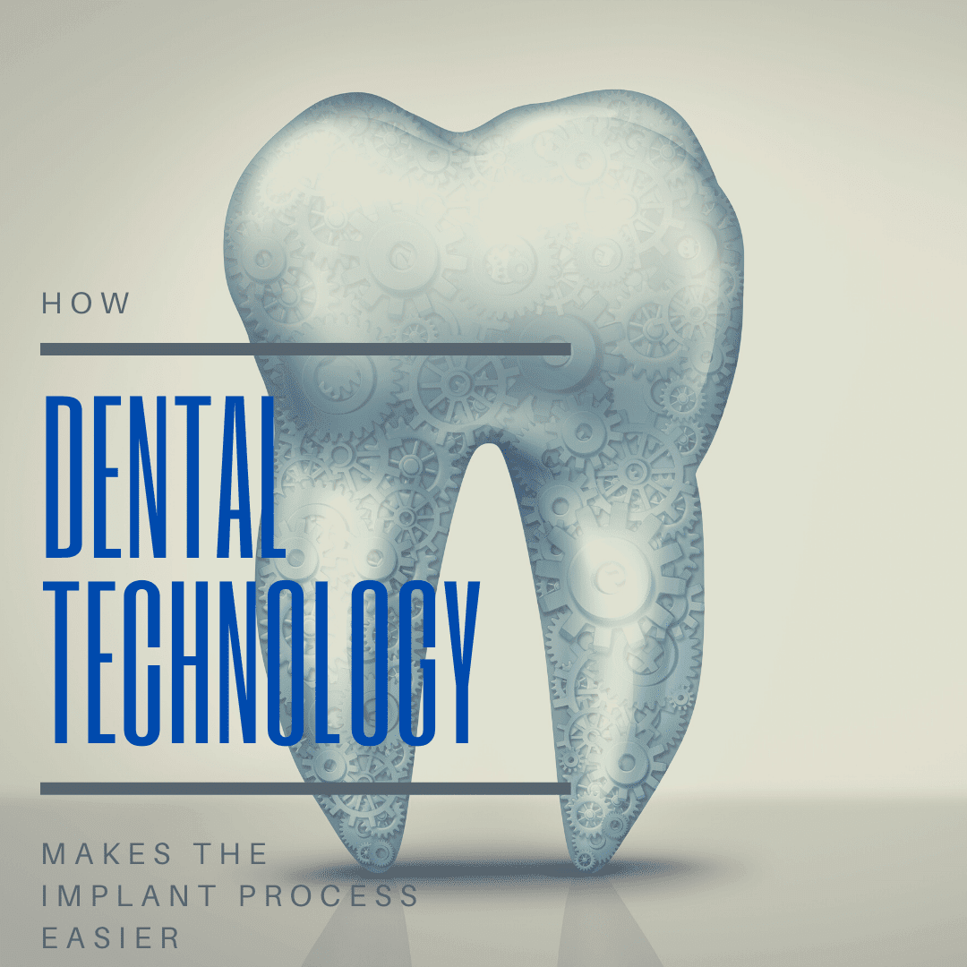 How dental technology makes the implant process easier