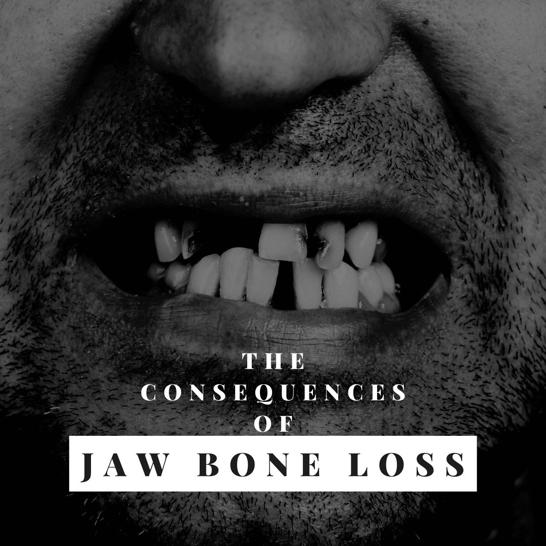 The Consequences of jaw bone loss
