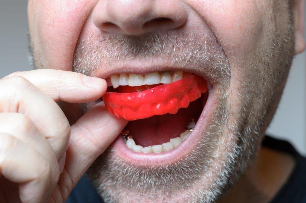 man putting in a dental nightguard