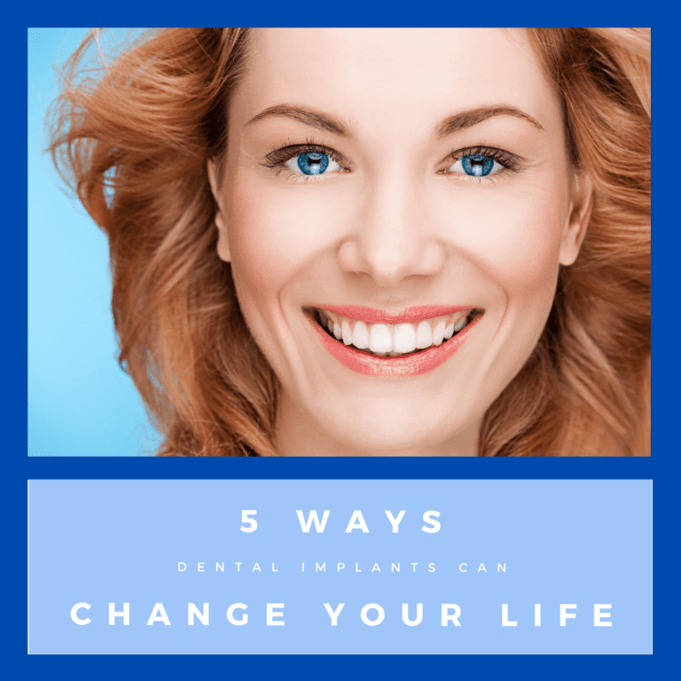 ways dental implants can change your life