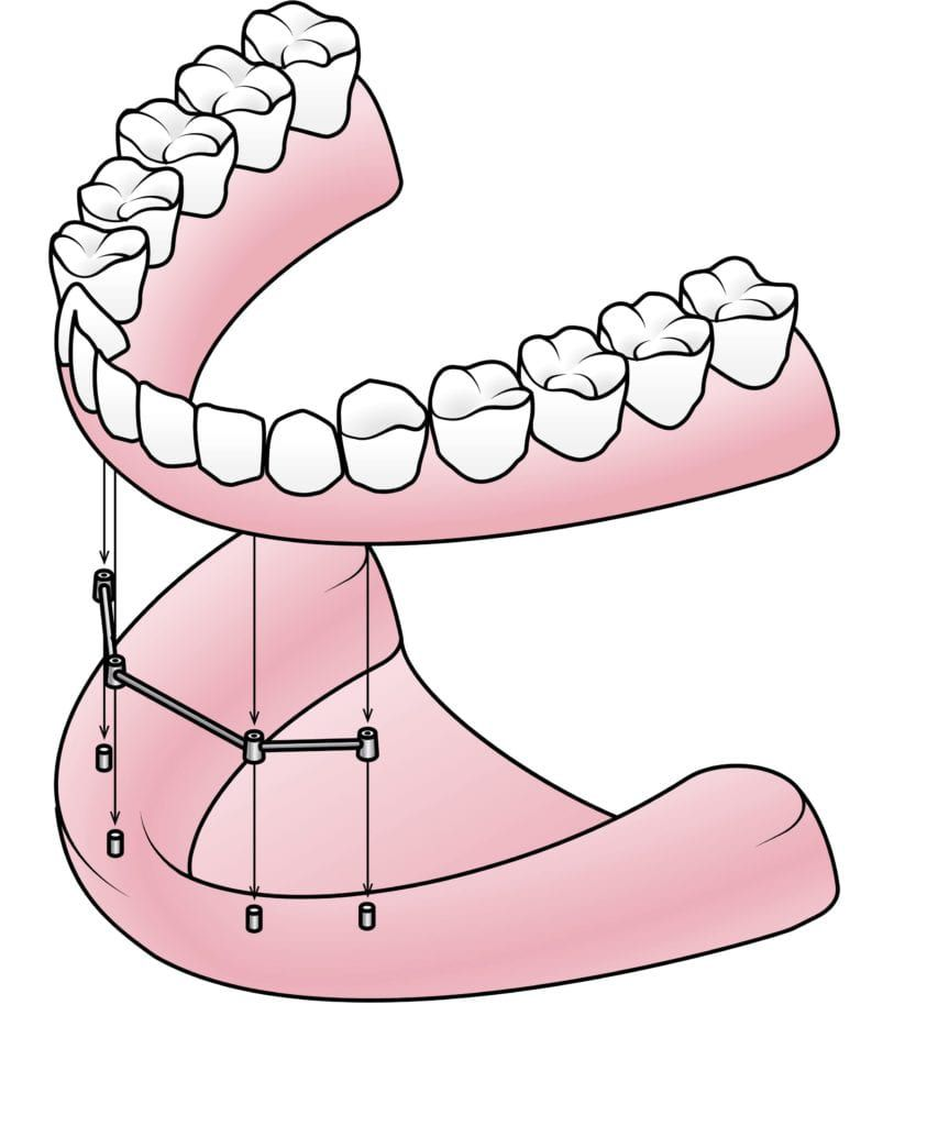 bar-retained fixed denture