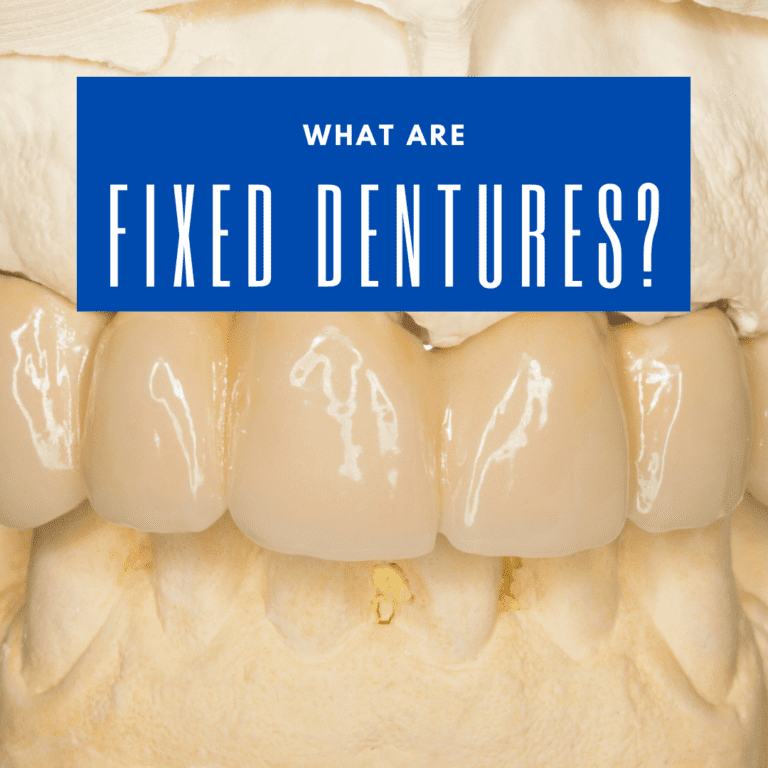 What are Fixed Dentures