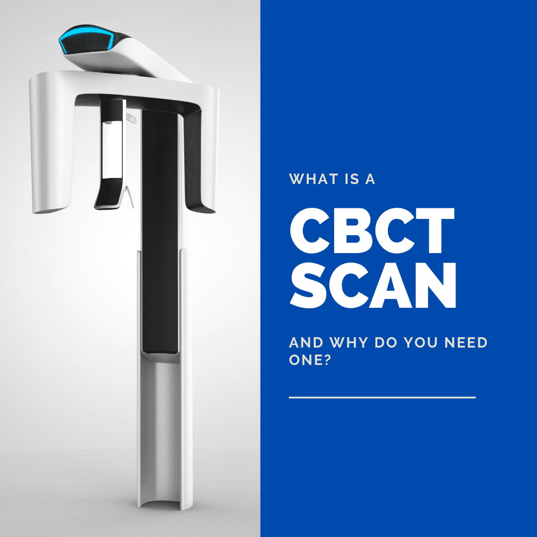 What is a CBCT Scan and Why Do You Need One?