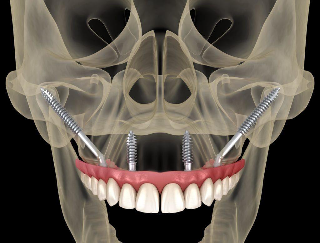 zygomatic dental implants