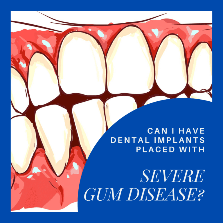 Can I have Dental Implants placed with severe gum disease