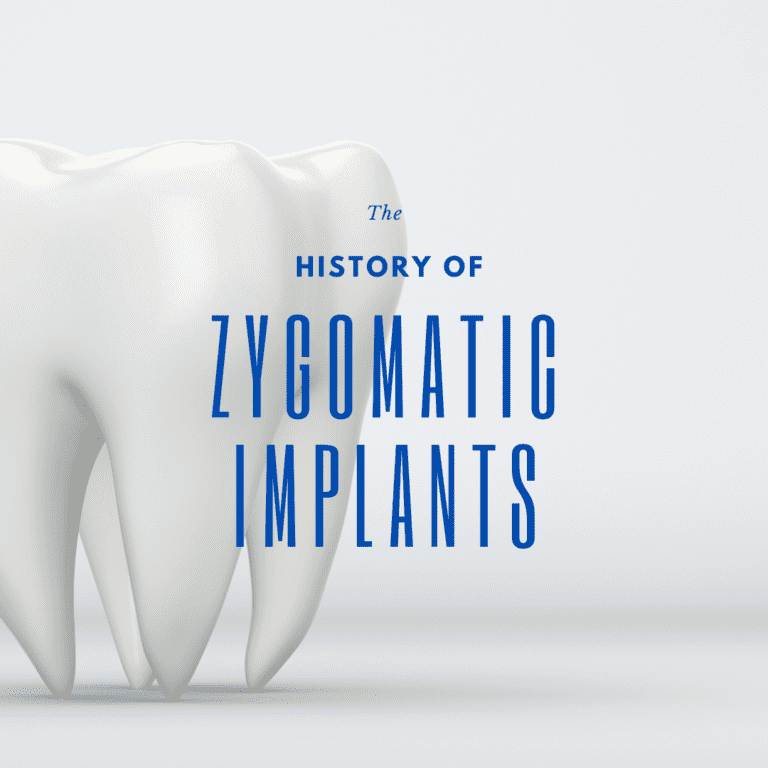 The history of zygomatic implants