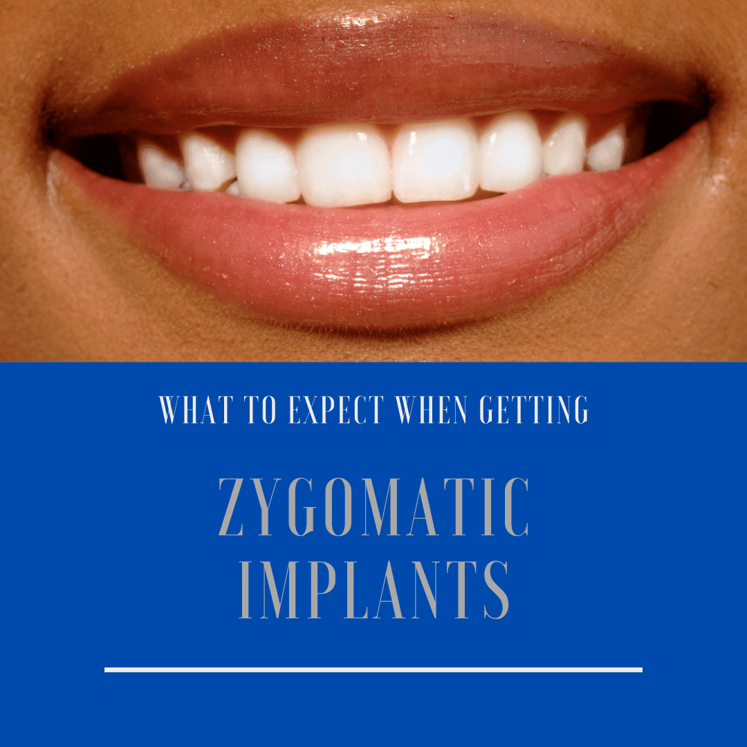 What to Expect When Getting zygomatic implants