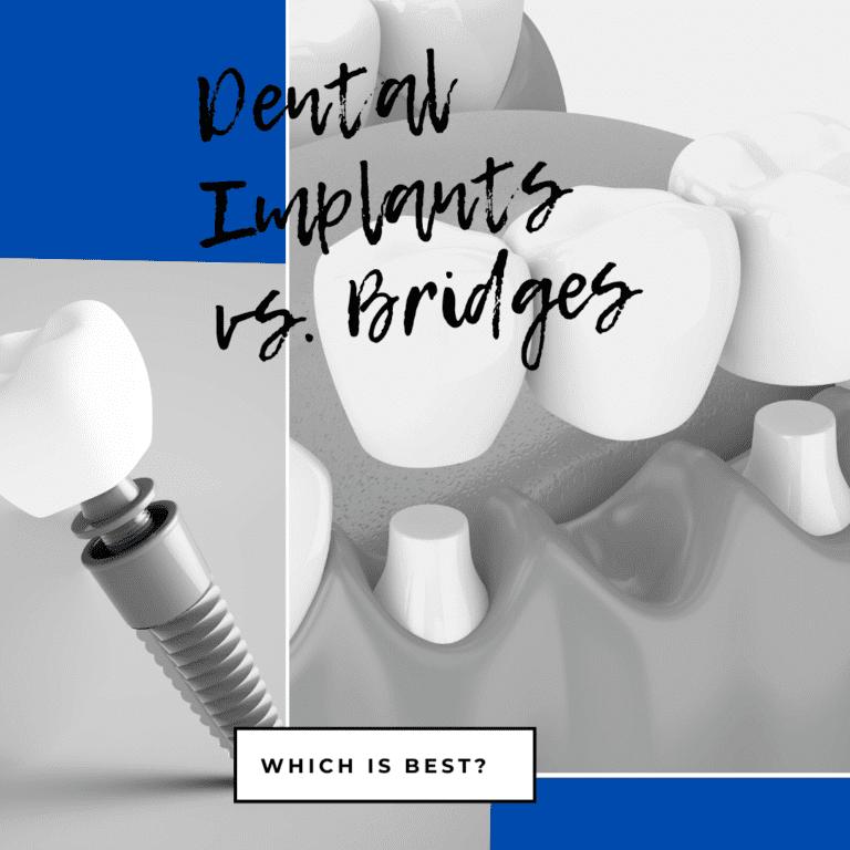 Dental Implants vs. Bridges