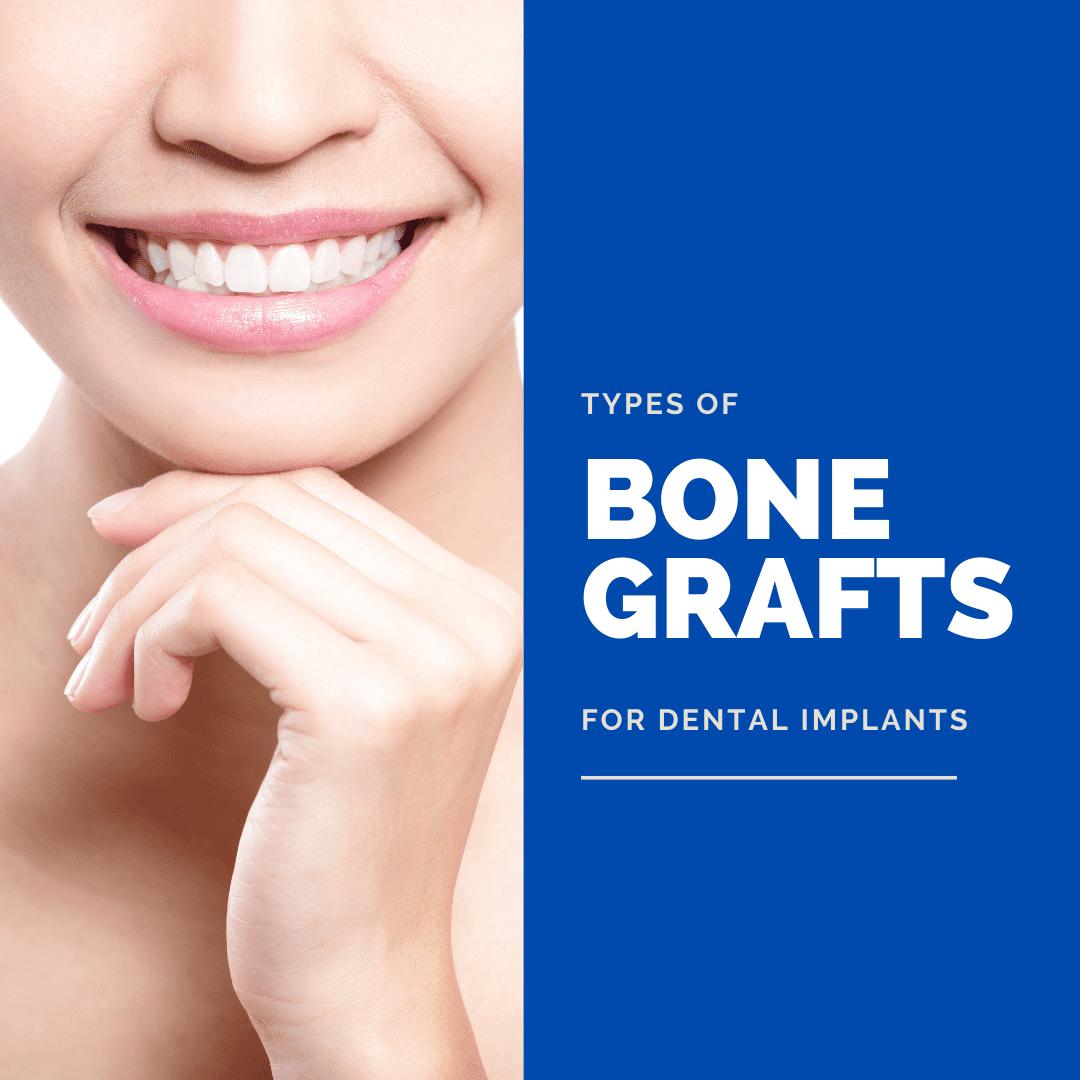 Types of bone grafts for dental implants