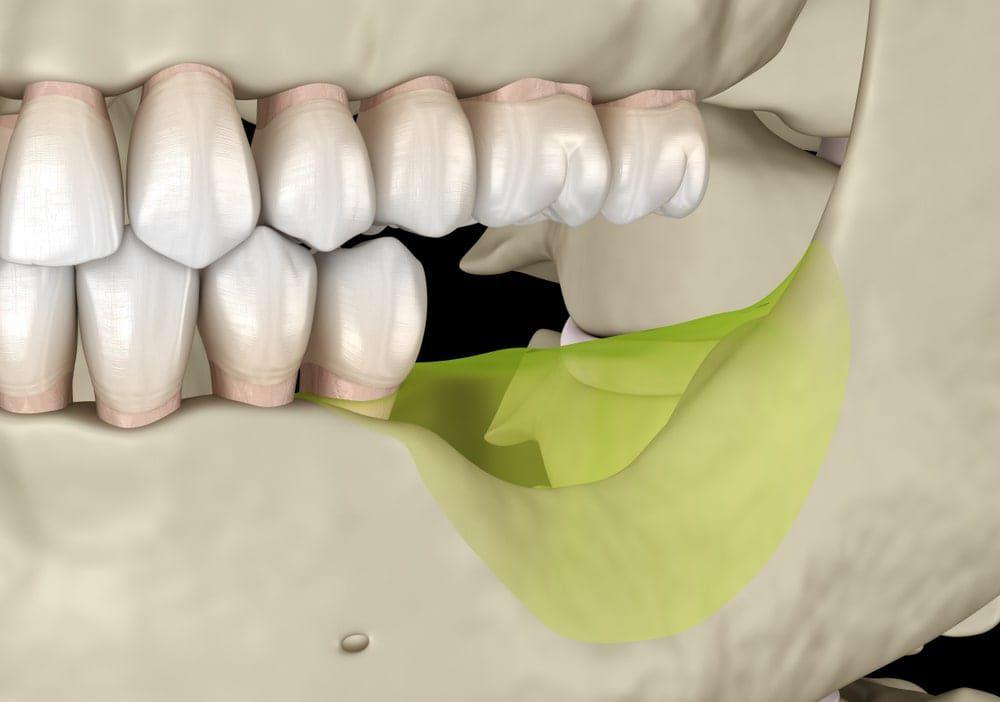 bone loss in jaw