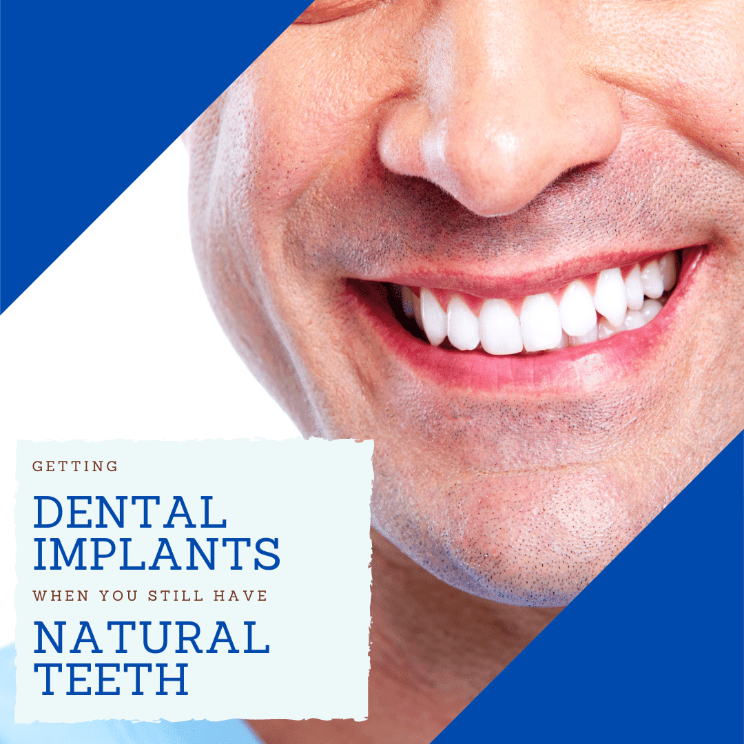 Getting Dental Implants when you still have natural teeth