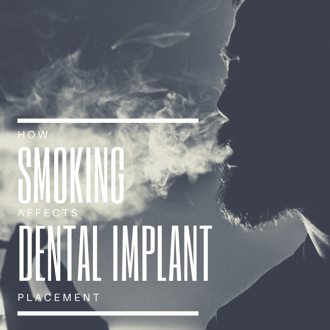 How Smoking Affects Dental implant placement