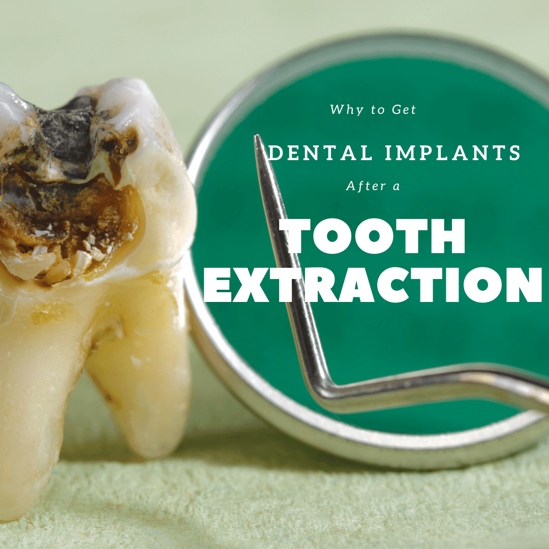 Why to Get Dental Implants After a Tooth Extraction
