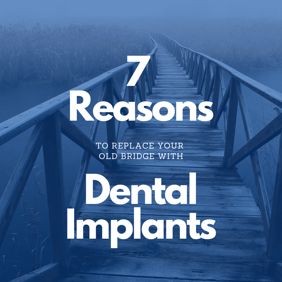 7 Reasons to replace your old bridge with dental implants