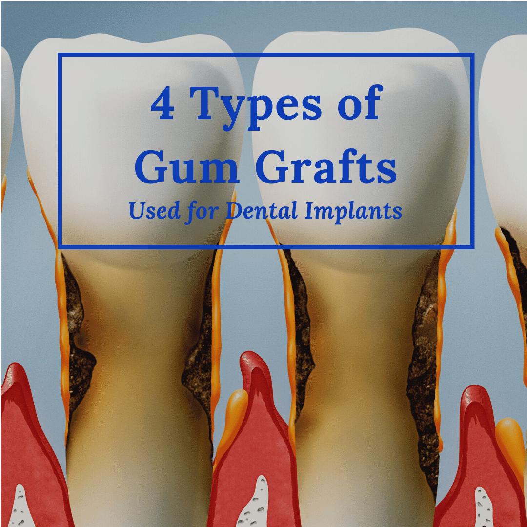 4 Types of Gum Grafts