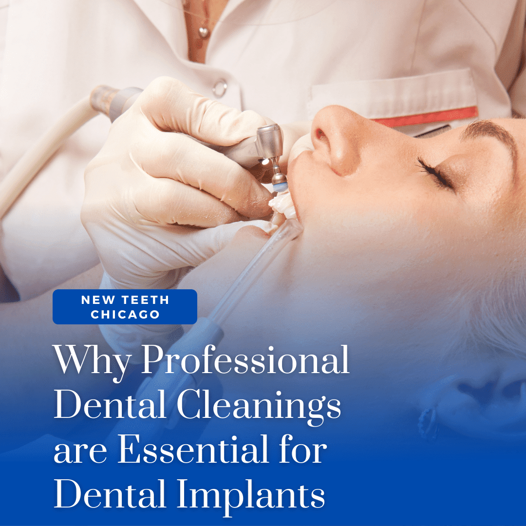 Why Professional Dental Cleanings are Essential for Dental Implants